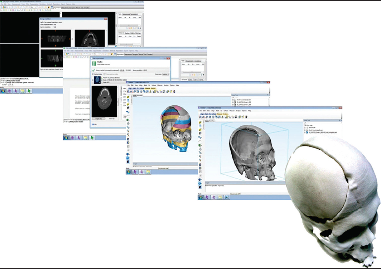 Figure 1: Conversion of computed tomography scan data to three-dimensional model. Translates the digital imaging and communications in medicine file from computed tomography or magnetic resonance imaging scans into computer-aided design file. Three-dimensional Slicing Software Converts computer-aided design file into thin data slices suitable for three-dimensional printing