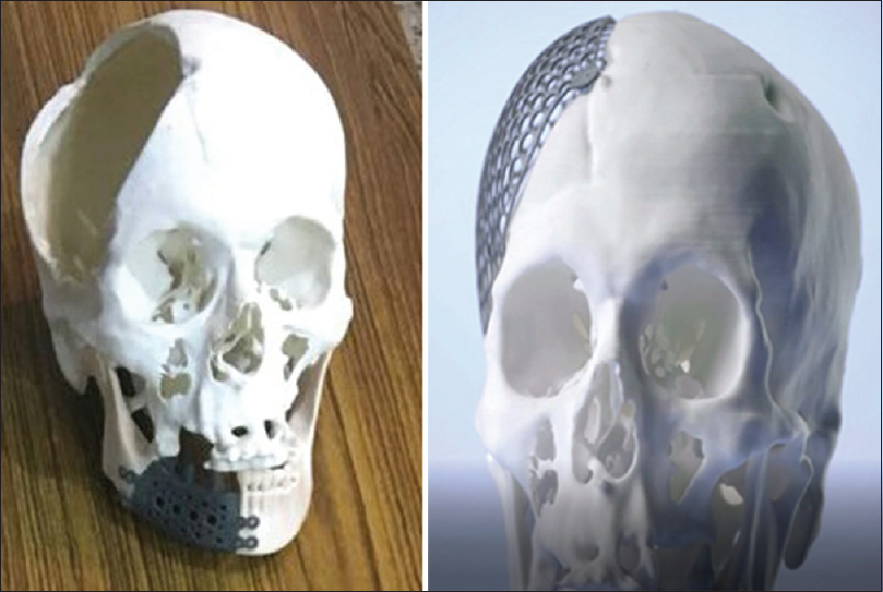 Figure 9: Cranioplasty and body of mandible implants in titanium fitted to a three-dimensional printed Selective Laser Sintering model